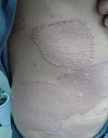 银屑病是什么原因导致的